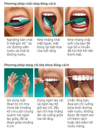 Thế nào là chải răng đúng cách